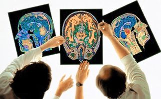 Brain Scan implant designers